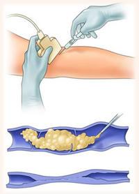 esclerosis con microespuma
